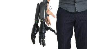 Youbionic gives augmented humans a helping hand, or two